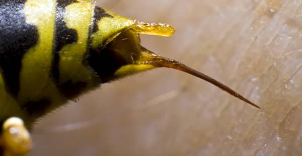 a bee stinger up close on a human resident of beverly beach maryland